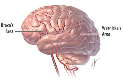 کار درمانی فلج مغزی